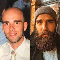 Как борода меняет человека фото приколы