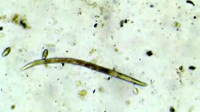 Смотреть Капля грязной воды под микроскопом